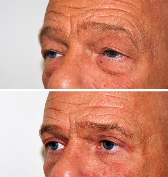 Linvecchiamento e crema di sollevamento di faccia